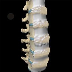 Diffuse Idiopathic Skeletal Hyperostosis Dish Virginia Dulles